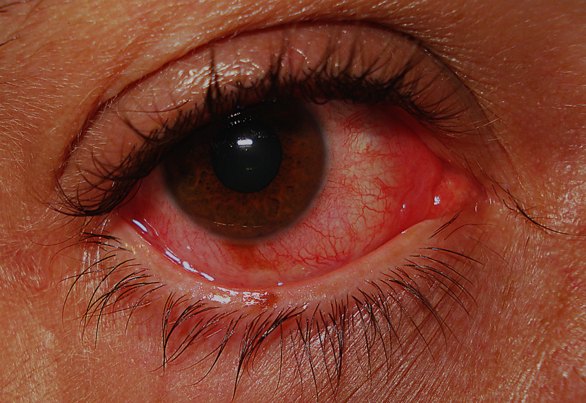 Conjunctivitis. Than to help the inflamed eye. Actovegin