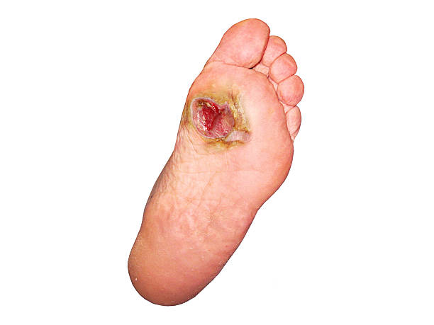 Diabetic foot. Actovegin buy