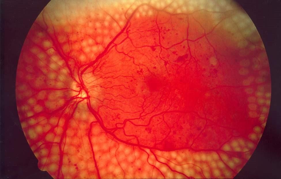 Diabetic retinopathy. Mildronate. Retinalamin