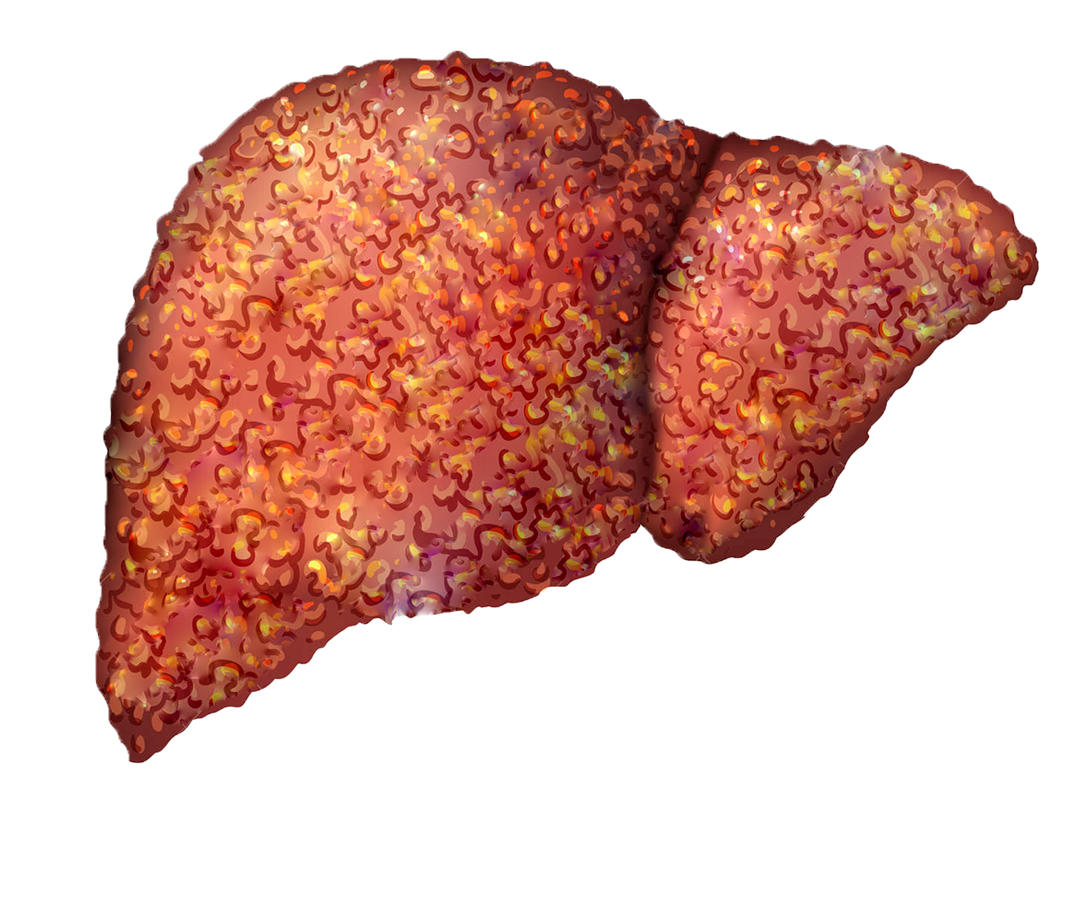 Heptral. B12. Cirrhosis of the liver.
