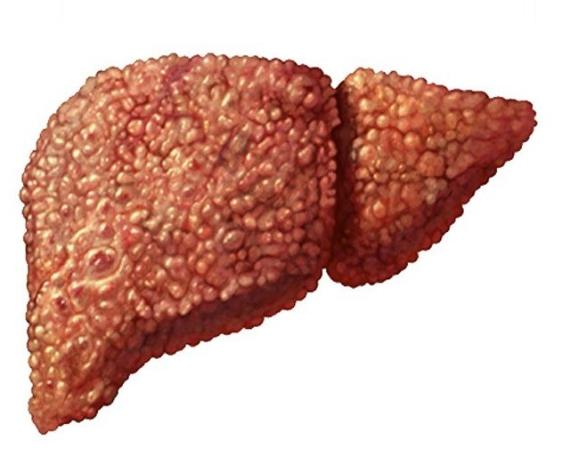 Cirrhosis of the liver Heptral, Layennec