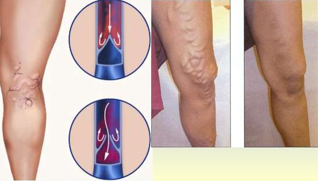 Actovegin. Chronic venous insufficiency.